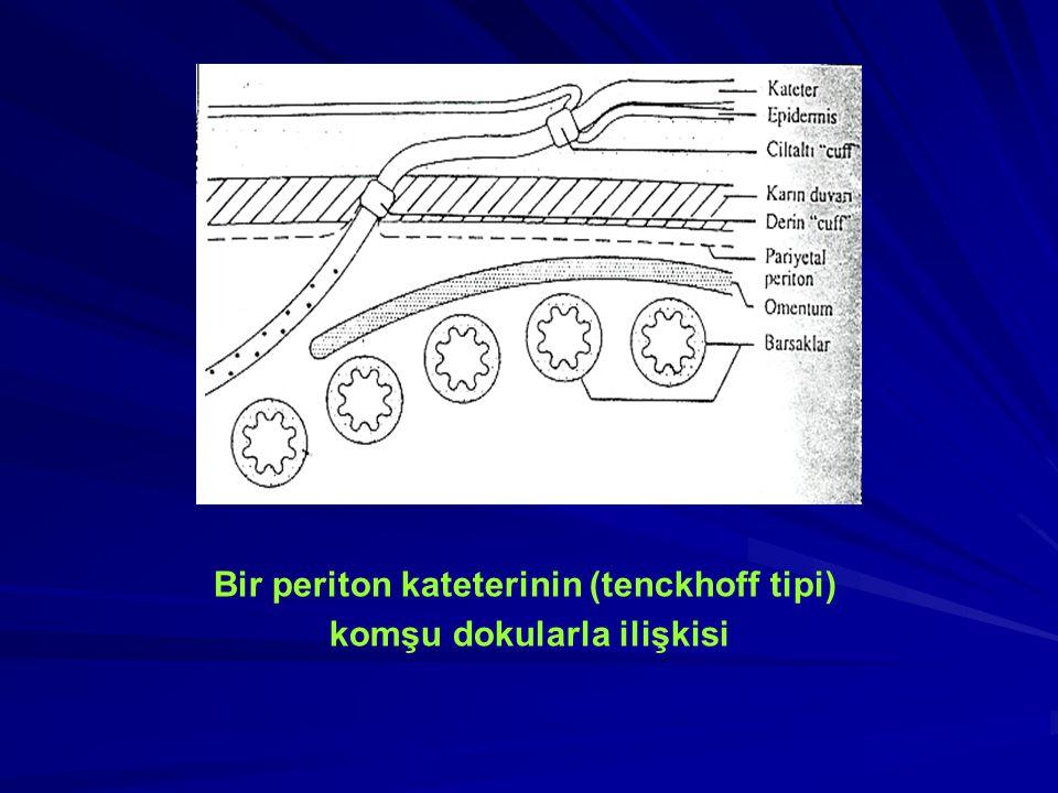 KAPALI (KÖR) YERLEŞTİRME Kapalı teknikle yerleştirme 2-3 cm'lik insizyon ile başlar.