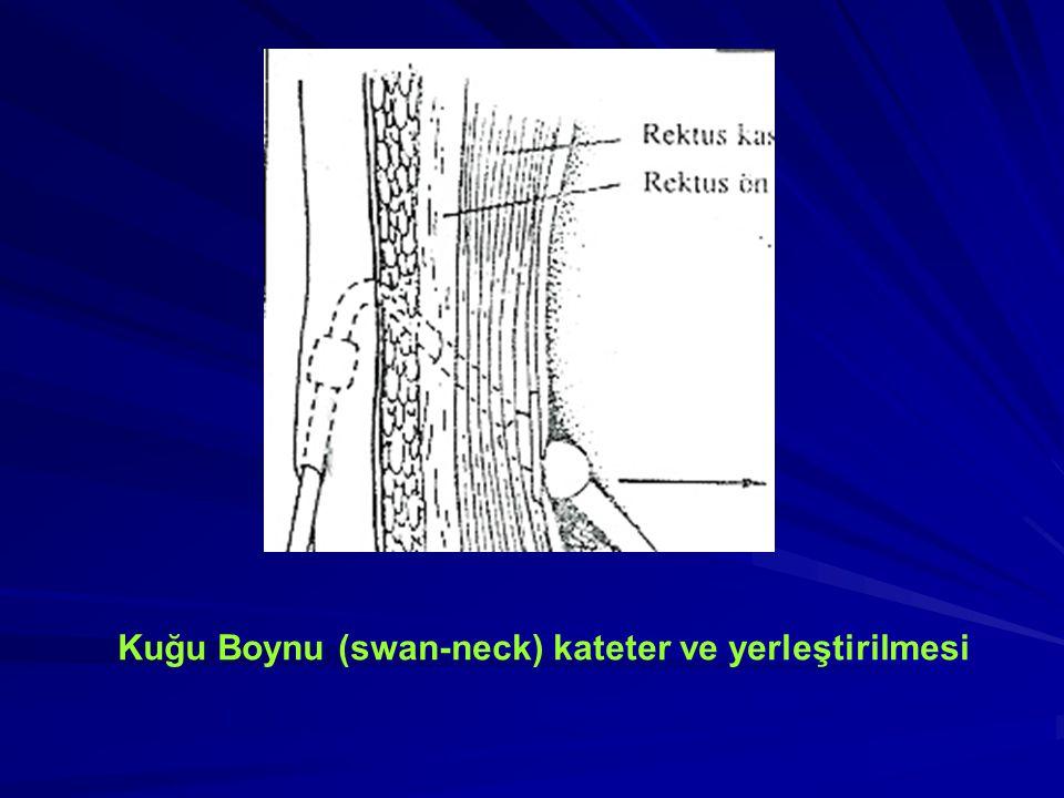 DÜZ TENCKHOFF KATETER: 1mm'lik yan delikler içeren 10 cm'lik bölüm, peritona girişiyle cilt çıkışı arasında cilt altı düz kısım SARMAL TENCKHOFF KATETER: 1 mm'lik yan delikler içeren 20 cm'lik sarmal bölüm, peritona girişiyle cilt çıkışı arasında cilt altı düz kısım KUĞU BOYNU KATETER: Peritona girişiyle cilt çıkışı arasında subkutan kısımda 150 derece acı oluşturmuştur.