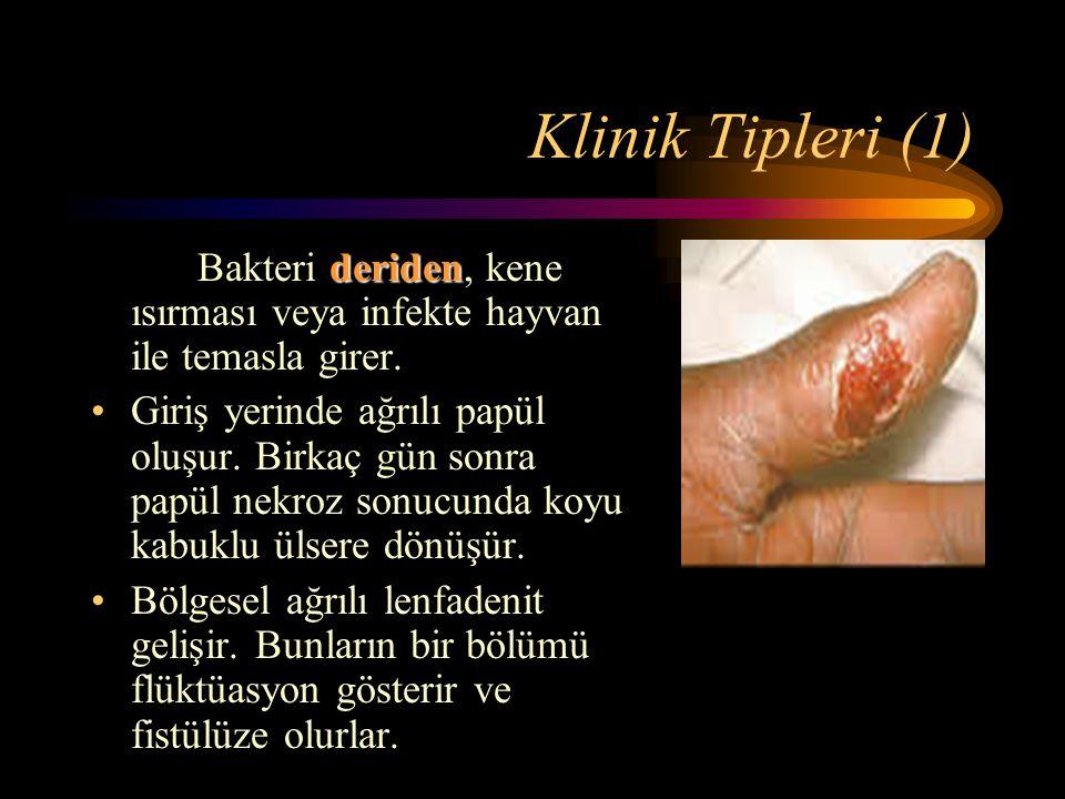 Klinik Tipleri (1) deriden Bakteri deriden, kene ısırması veya infekte hayvan ile temasla girer. Giriş yerinde ağrılı papül oluşur. Birkaç gün sonra p