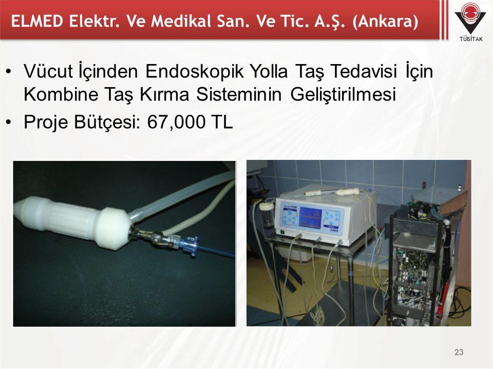 TÜBİTAK ELMED Elektr. Ve Medikal San. Ve Tic. A.Ş. (Ankara) Vücut İçinden Endoskopik Yolla Taş Tedavisi İçin Kombine Taş Kırma Sisteminin Geliştirilme