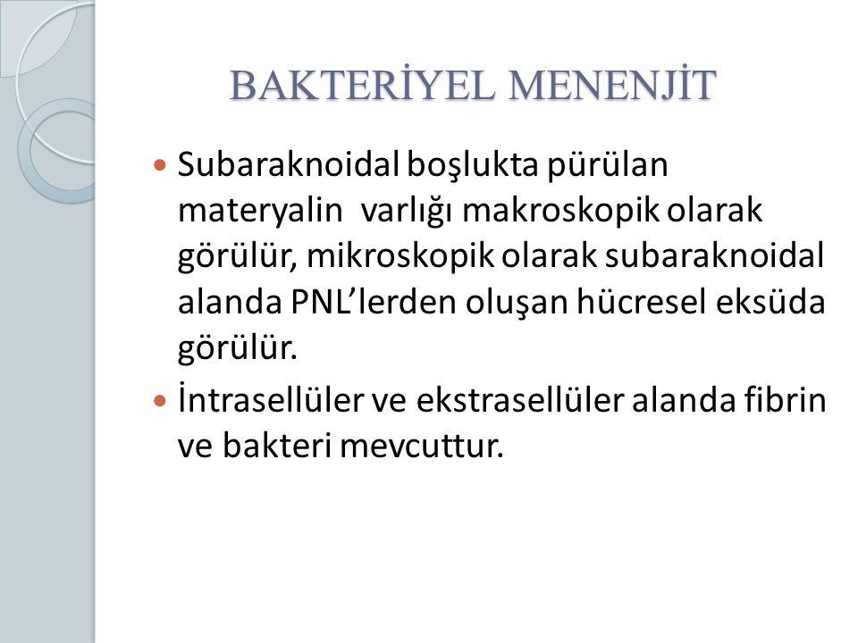 BAKTERİYEL MENENJİT Subaraknoidal boşlukta pürülan materyalin varlığı makroskopik olarak görülür, mikroskopik olarak subaraknoidal alanda PNL'lerden o