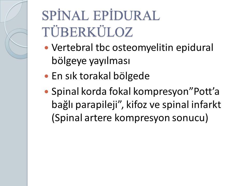 """SPİNAL EPİDURAL TÜBERKÜLOZ Vertebral tbc osteomyelitin epidural bölgeye yayılması En sık torakal bölgede Spinal korda fokal kompresyon""""Pott'a bağlı pa"""