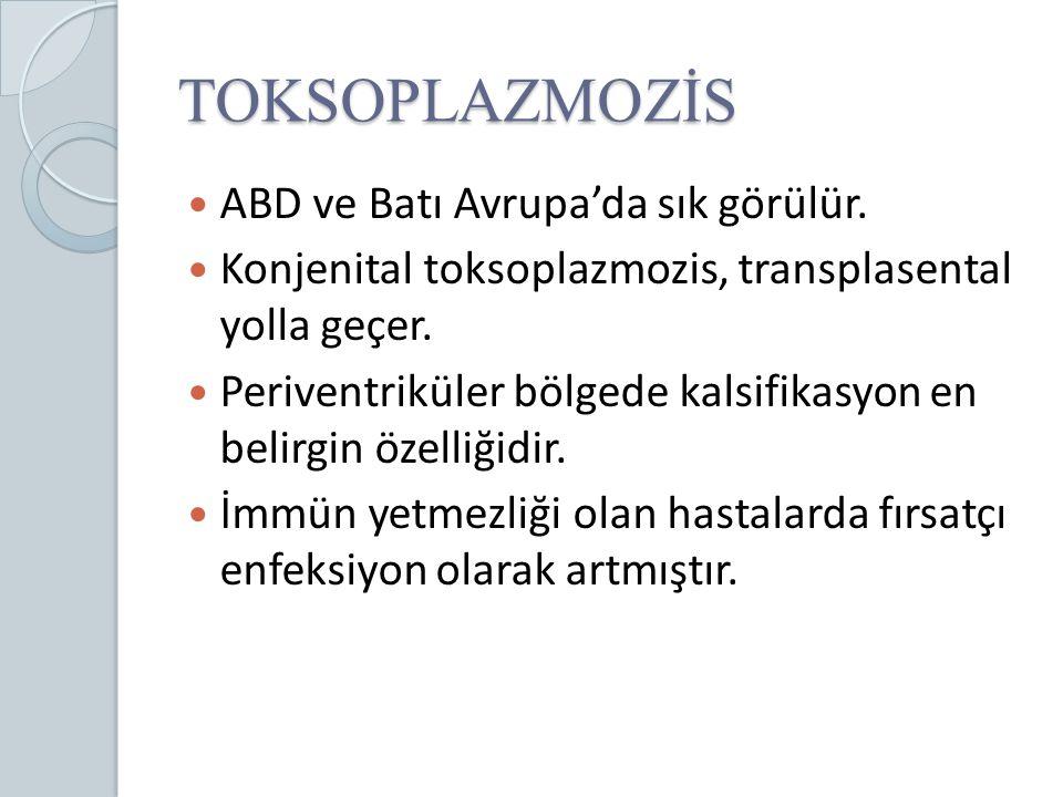 TOKSOPLAZMOZİS ABD ve Batı Avrupa'da sık görülür. Konjenital toksoplazmozis, transplasental yolla geçer. Periventriküler bölgede kalsifikasyon en beli