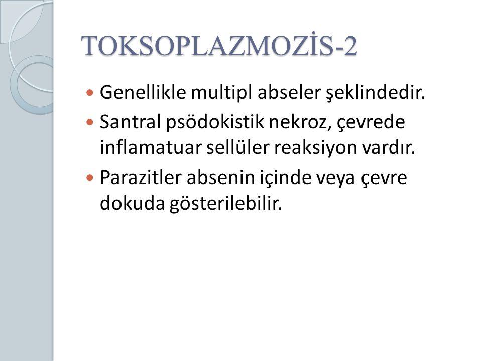 TOKSOPLAZMOZİS-2 Genellikle multipl abseler şeklindedir. Santral psödokistik nekroz, çevrede inflamatuar sellüler reaksiyon vardır. Parazitler absenin