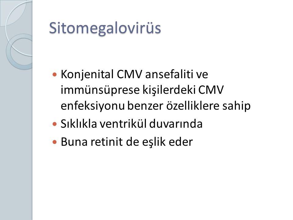 Sitomegalovirüs Konjenital CMV ansefaliti ve immünsüprese kişilerdeki CMV enfeksiyonu benzer özelliklere sahip Sıklıkla ventrikül duvarında Buna retin