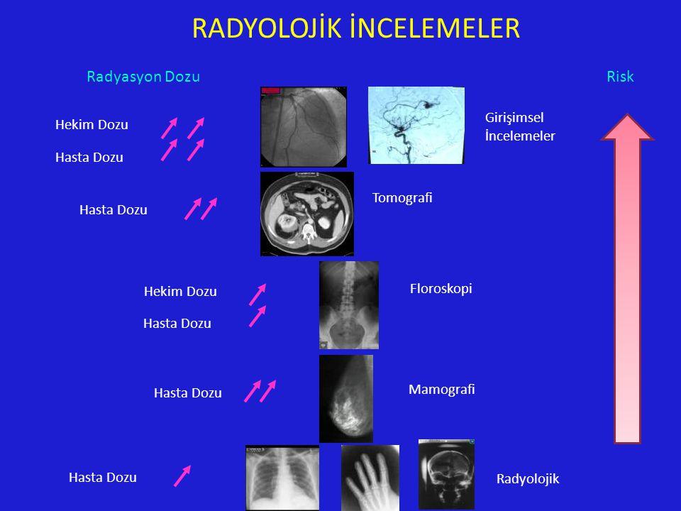 RADYOLOJİK İNCELEMELER Girişimsel İncelemeler Tomografi Mamografi Radyolojik Floroskopi Hekim Dozu Hasta Dozu Hekim Dozu Hasta Dozu Radyasyon DozuRisk