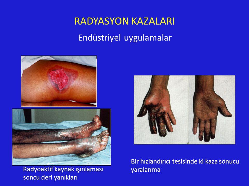 Bir hızlandırıcı tesisinde ki kaza sonucu yaralanma Radyoaktif kaynak ışınlaması soncu deri yanıkları RADYASYON KAZALARI Endüstriyel uygulamalar
