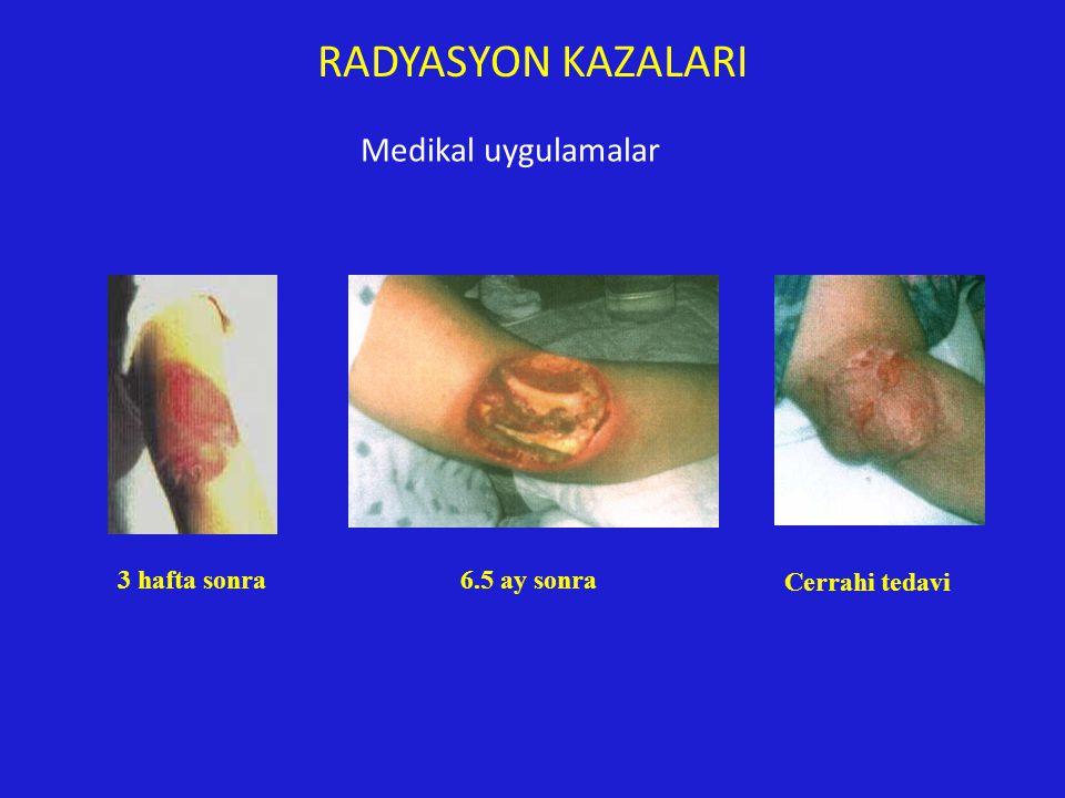 3 hafta sonra6.5 ay sonra Cerrahi tedavi RADYASYON KAZALARI Medikal uygulamalar