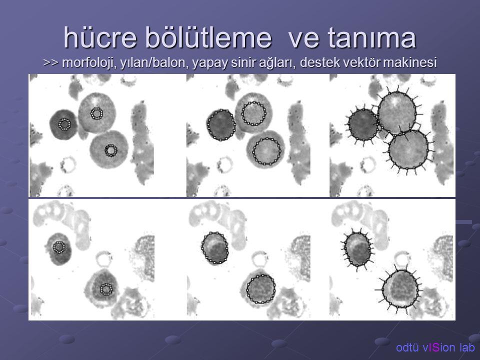 hücre bölütleme ve tanıma >> morfoloji, yılan/balon, yapay sinir ağları, destek vektör makinesi odtü vISion lab