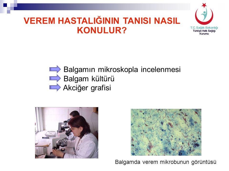 Balgamda verem mikrobunun görüntüsü VEREM HASTALIĞININ TANISI NASIL KONULUR? Balgamın mikroskopla incelenmesi Balgam kültürü Akciğer grafisi