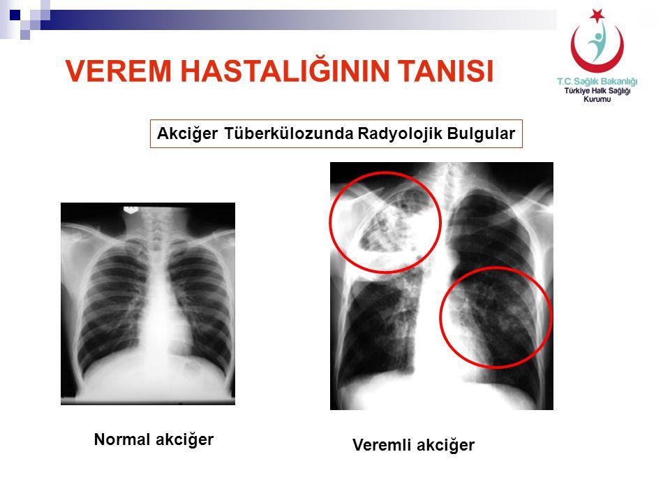 Akciğer Tüberkülozunda Radyolojik Bulgular Normal akciğer Veremli akciğer VEREM HASTALIĞININ TANISI