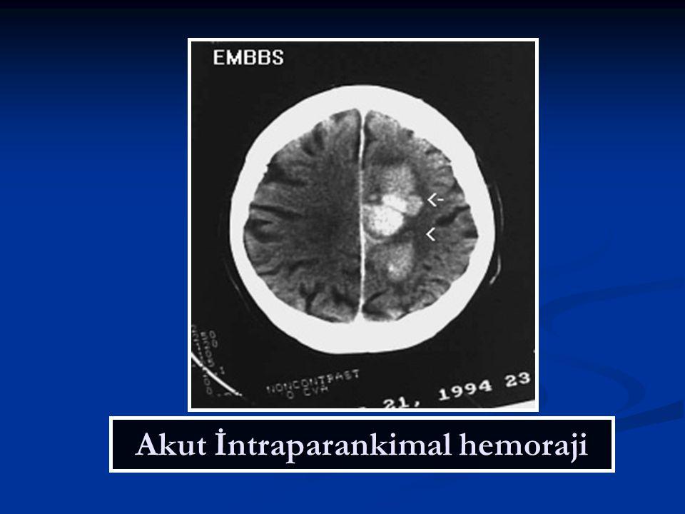 Akut İntraparankimal hemoraji