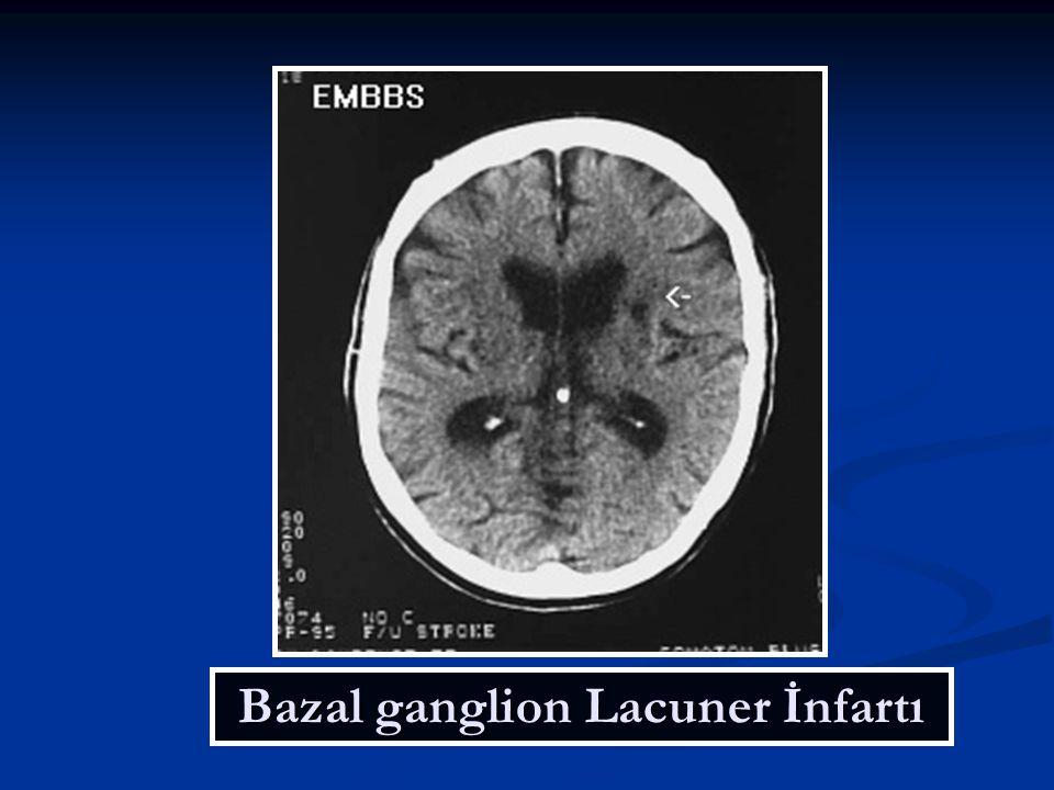 Bazal ganglion Lacuner İnfartı
