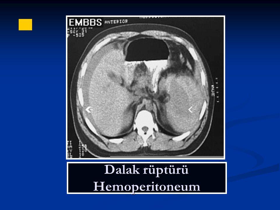 Dalak rüptürü Hemoperitoneum