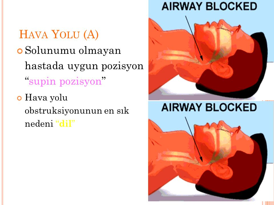 """H AVA Y OLU (A) Solunumu olmayan hastada uygun pozisyon """"supin pozisyon"""" Hava yolu obstruksiyonunun en sık nedeni """" dil """""""