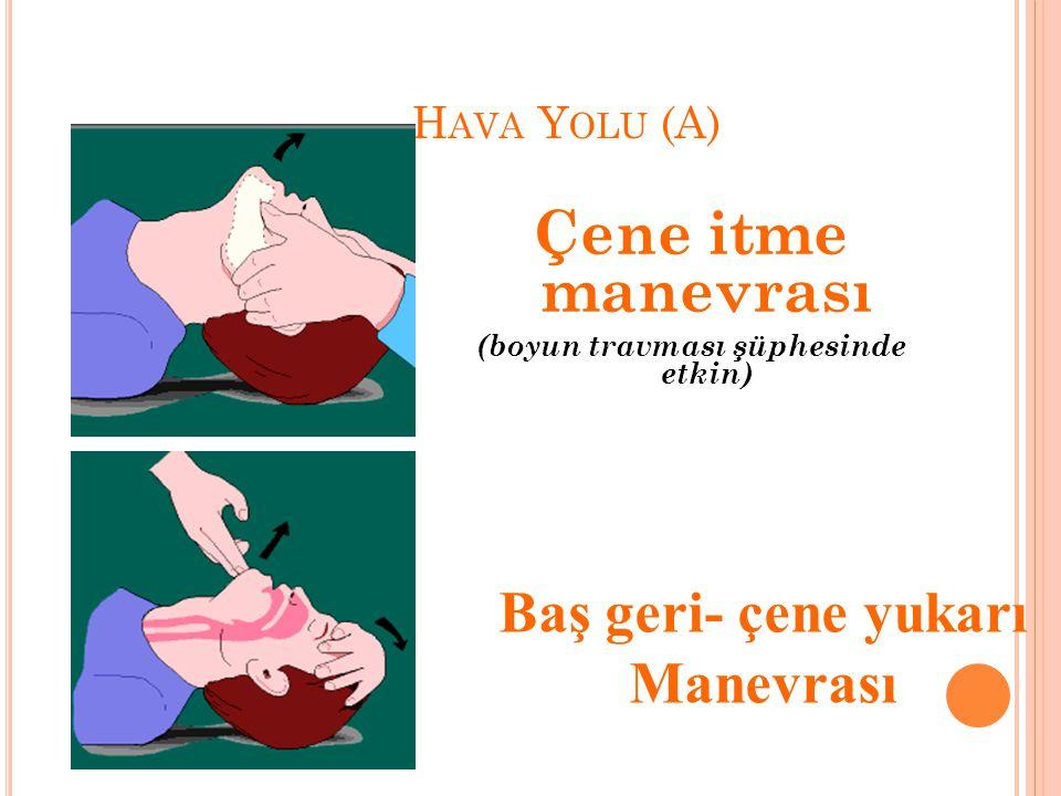 H AVA Y OLU (A) Çene itme manevrası (boyun travması şüphesinde etkin) Baş geri- çene yukarı Manevrası