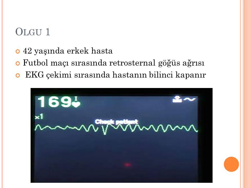 O LGU 1 42 yaşında erkek hasta Futbol maçı sırasında retrosternal göğüs ağrısı EKG çekimi sırasında hastanın bilinci kapanır