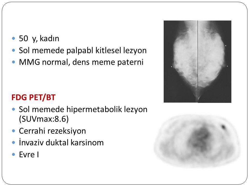 50 y, kadın Sol memede palpabl kitlesel lezyon MMG normal, dens meme paterni FDG PET/BT Sol memede hipermetabolik lezyon (SUVmax:8.6) Cerrahi rezeksiy