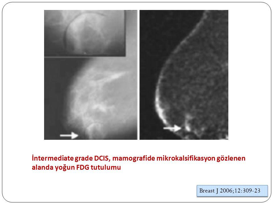 İntermediate grade DCIS, mamografide mikrokalsifikasyon gözlenen alanda yoğun FDG tutulumu Breast J 2006;12:309-23