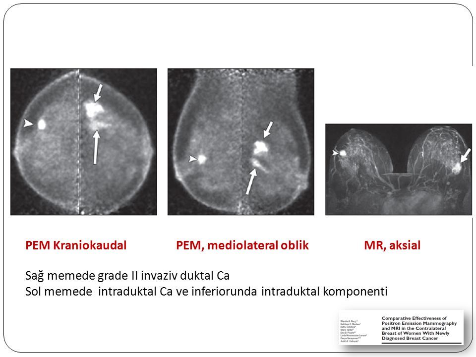 PEM Kraniokaudal PEM, mediolateral oblik MR, aksial Sağ memede grade II invaziv duktal Ca Sol memede intraduktal Ca ve inferiorunda intraduktal kompon