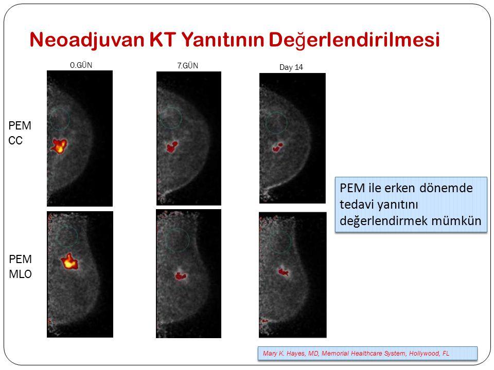 Neoadjuvan KT Yanıtının De ğ erlendirilmesi PEM CC 0.GÜN 7.GÜN Day 14 PEM MLO PEM ile erken dönemde tedavi yanıtını değerlendirmek mümkün Mary K. Haye