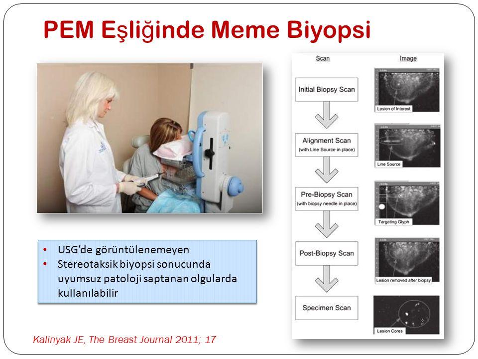 PEM E ş li ğ inde Meme Biyopsi Kalinyak JE, The Breast Journal 2011; 17 USG'de görüntülenemeyen Stereotaksik biyopsi sonucunda uyumsuz patoloji saptan