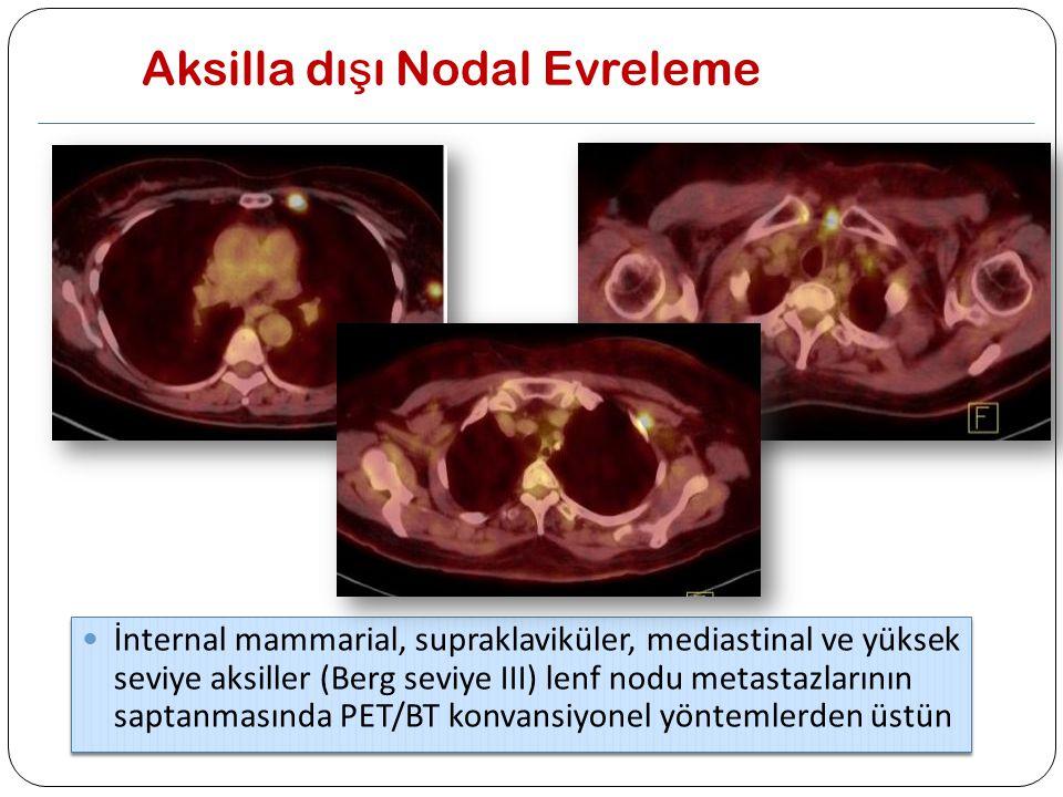 Aksilla dı ş ı Nodal Evreleme İnternal mammarial, supraklaviküler, mediastinal ve yüksek seviye aksiller (Berg seviye III) lenf nodu metastazlarının s