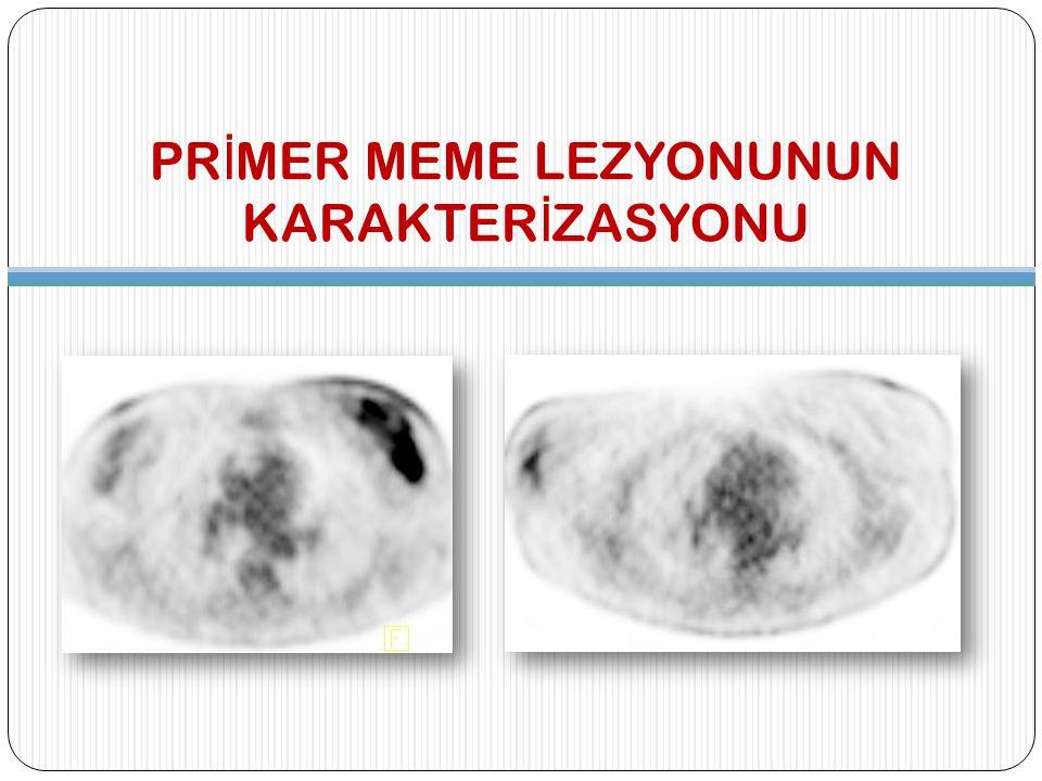 FDG PET/BT'nin L İ M İ TASYONLARI YANLIŞ NEGATİF LEZYONLAR 1 cm'den küçük lezyonlar Lobuler, tubuler, müsinöz karsinom İnsitu duktal karsinom Düşük mitotik aktivite Düşük histolojik derece YANLIŞ NEGATİF LEZYONLAR 1 cm'den küçük lezyonlar Lobuler, tubuler, müsinöz karsinom İnsitu duktal karsinom Düşük mitotik aktivite Düşük histolojik derece YANLIŞ POZİTİF LEZYONLAR ve DURUMLAR Selüler aktivitesi yüksek benign lezyonlar (fibroadenom, displazi) Mastit, yağ nekrozu, post-op enflamasyon Hormonal durum Hormonoterapi Proliferatif glandüler meme dokusu YANLIŞ POZİTİF LEZYONLAR ve DURUMLAR Selüler aktivitesi yüksek benign lezyonlar (fibroadenom, displazi) Mastit, yağ nekrozu, post-op enflamasyon Hormonal durum Hormonoterapi Proliferatif glandüler meme dokusu