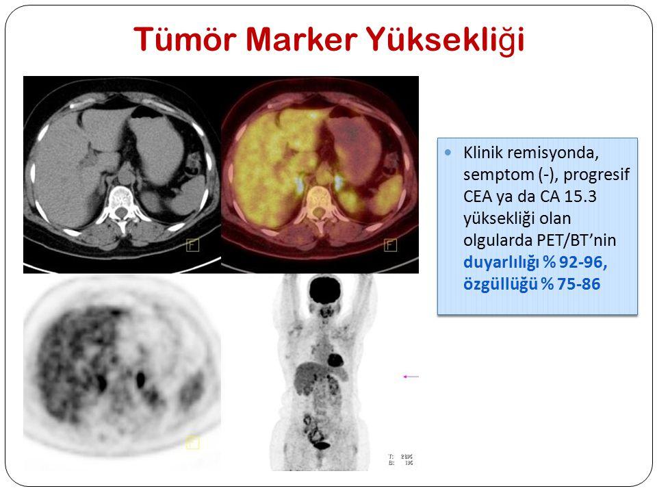 Tümör Marker Yüksekli ğ i Klinik remisyonda, semptom (-), progresif CEA ya da CA 15.3 yüksekliği olan olgularda PET/BT'nin duyarlılığı % 92-96, özgüll