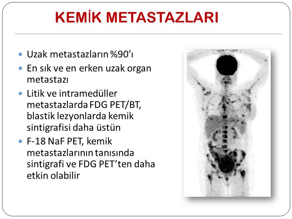 KEM İ K METASTAZLARI Uzak metastazların %90'ı En sık ve en erken uzak organ metastazı Litik ve intramedüller metastazlarda FDG PET/BT, blastik lezyonl