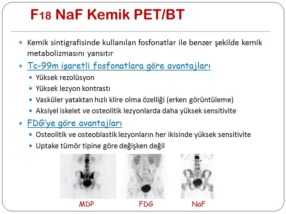 F 18 NaF Kemik PET/BT Kemik sintigrafisinde kullanılan fosfonatlar ile benzer şekilde kemik metabolizmasını yansıtır Tc-99m işaretli fosfonatlara göre