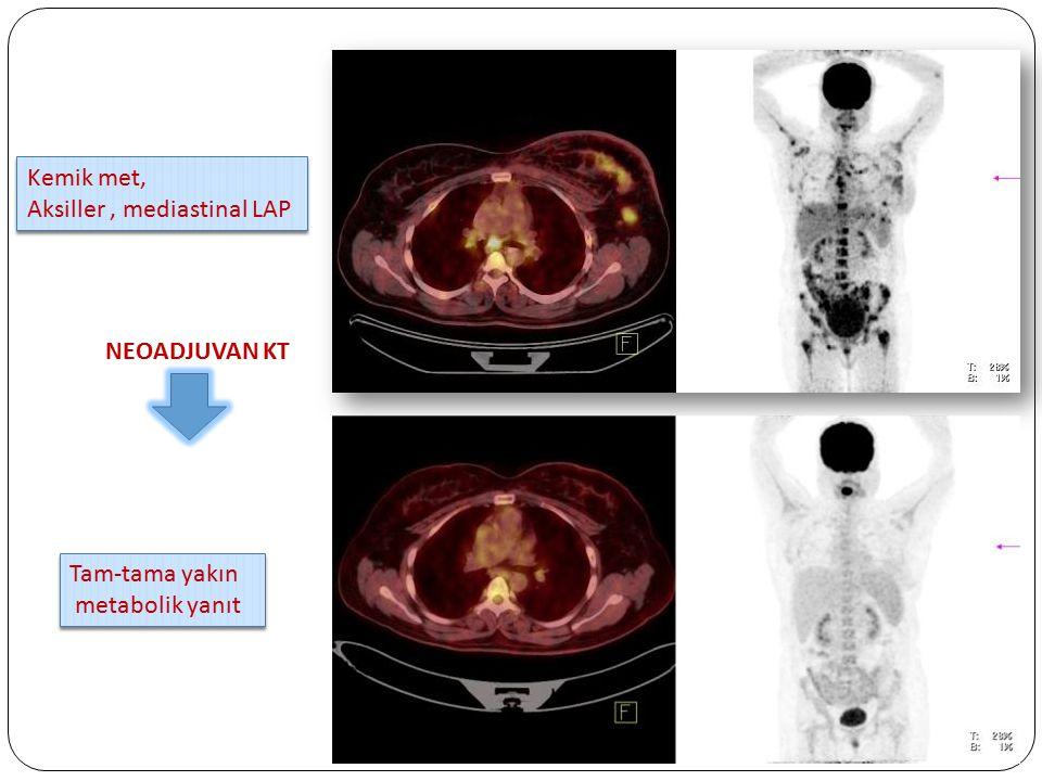 Kemik met, Aksiller, mediastinal LAP Kemik met, Aksiller, mediastinal LAP NEOADJUVAN KT Tam-tama yakın metabolik yanıt Tam-tama yakın metabolik yanıt