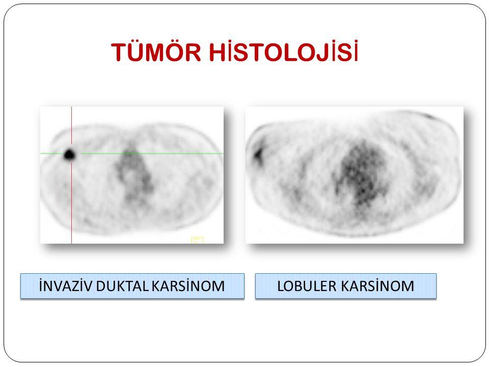 Antihormonal Tedavi Yanıtını De ğ erlendirmede PET/BT Metabolik yanıt İyi prognoz Daha uzun hastalıksız sağkalım süresi Tedavi sonrası tümöral dokuda düşük Ki-67 indeksi İyi prognoz Daha uzun hastalıksız sağkalım süresi Tedavi sonrası tümöral dokuda düşük Ki-67 indeksi İlk 7-10 gün SUV'da geçici artış olabilir (metabolik flare) Tümör markerları ilk 3 ay geçici yükselip, sonra azalabiliyor (tümöral flare) Tümör marker yüksekliği FDG PET/BT ile desteklenmeden progresyon yönünde karar verilmemeli Antihormonal tedaviye yanıt için de PET/BT güvenilir Eur J Nucl Med Mol Imaging 2012;39:450-60 Eur J Nucl Med Mol Imaging Res 2012;2:34 Eur J Nucl Med Mol Imaging 2012;39:450-60 Eur J Nucl Med Mol Imaging Res 2012;2:34
