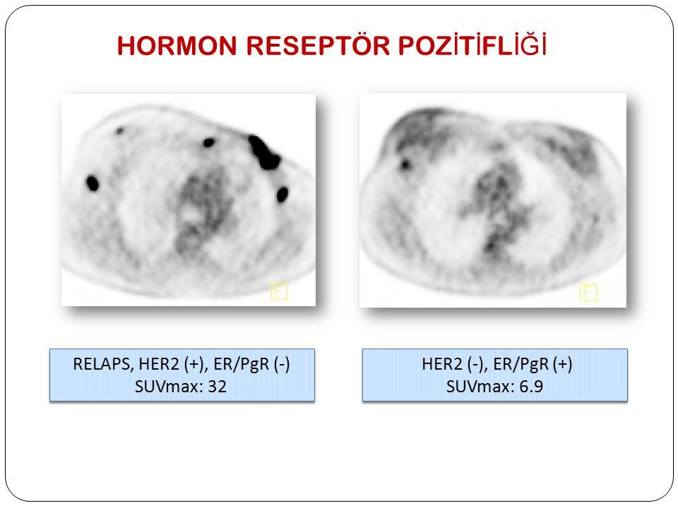 RELAPS, HER2 (+), ER/PgR (-) SUVmax: 32 RELAPS, HER2 (+), ER/PgR (-) SUVmax: 32 HER2 (-), ER/PgR (+) SUVmax: 6.9 HER2 (-), ER/PgR (+) SUVmax: 6.9 HORM