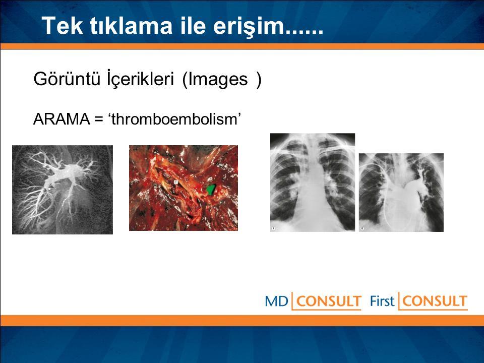 Tek tıklama ile erişim...... Görüntü İçerikleri (Images ) ARAMA = 'thromboembolism'