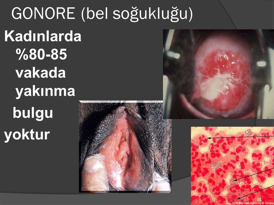 GONORE (bel soğukluğu) Kadınlarda %80-85 vakada yakınma bulgu yoktur