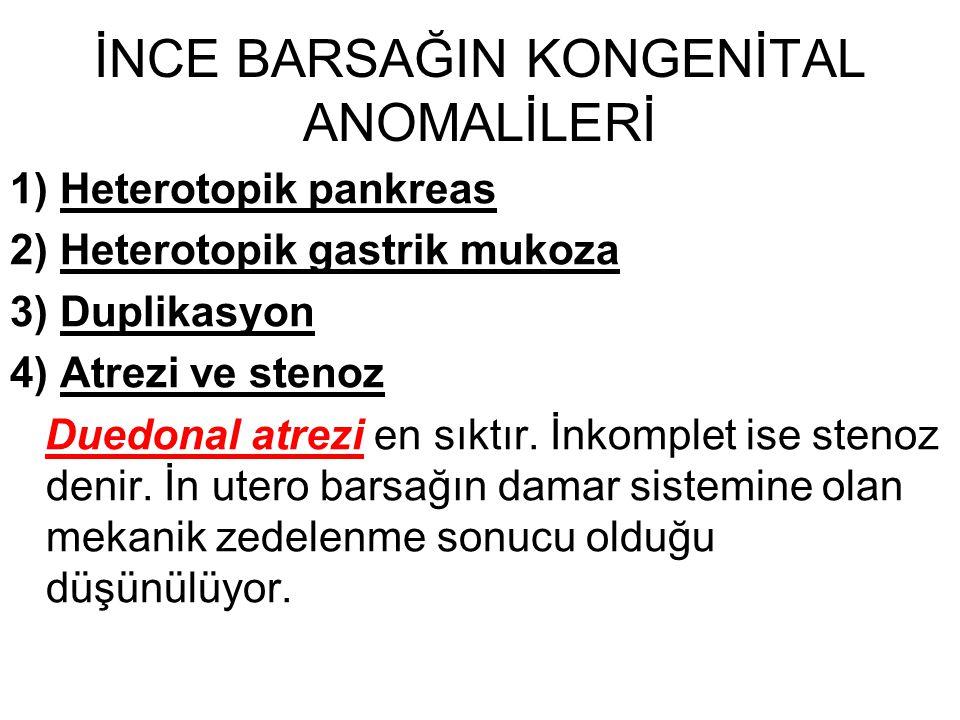1) Heterotopik pankreas 2) Heterotopik gastrik mukoza 3) Duplikasyon 4) Atrezi ve stenoz Duedonal atrezi en sıktır. İnkomplet ise stenoz denir. İn ute