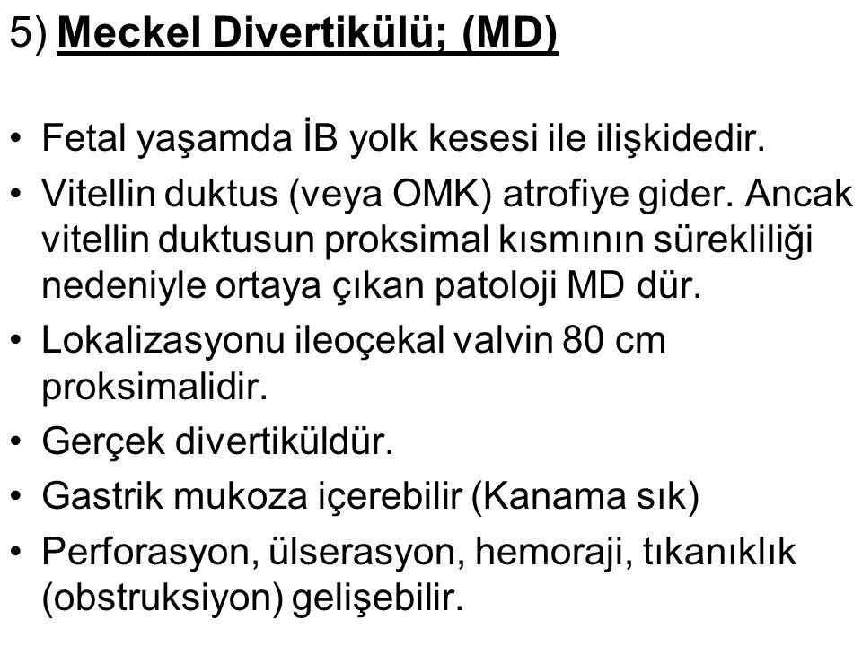5) Meckel Divertikülü; (MD) Fetal yaşamda İB yolk kesesi ile ilişkidedir. Vitellin duktus (veya OMK) atrofiye gider. Ancak vitellin duktusun proksimal