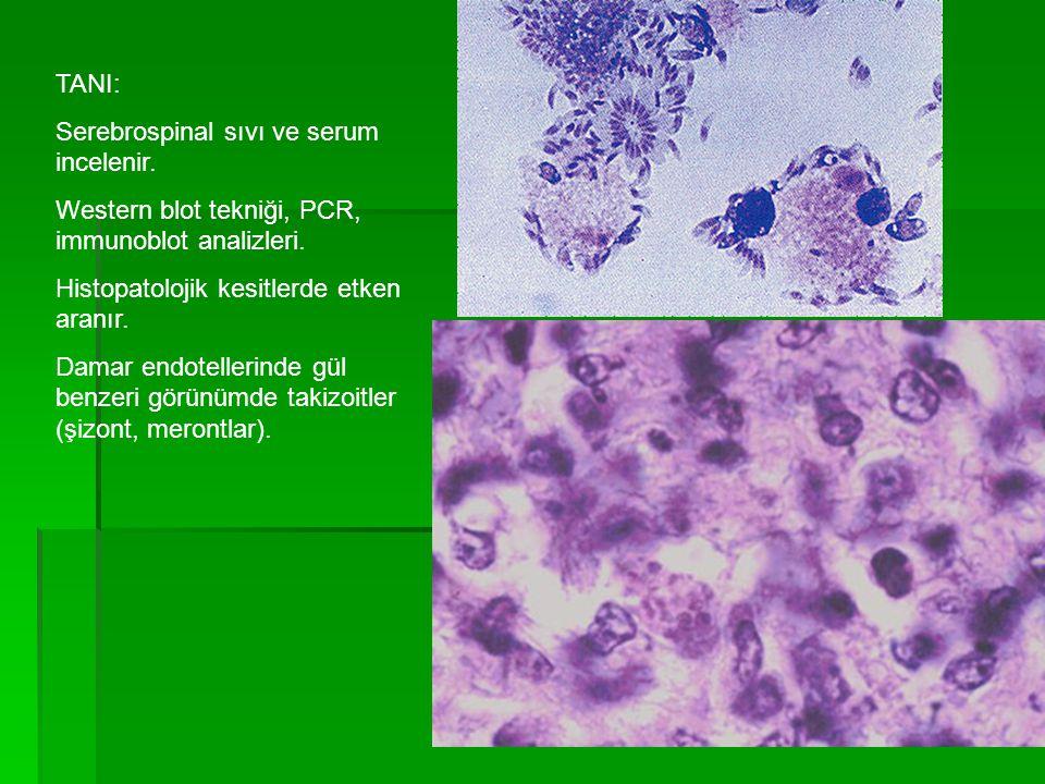 TANI: Serebrospinal sıvı ve serum incelenir. Western blot tekniği, PCR, immunoblot analizleri. Histopatolojik kesitlerde etken aranır. Damar endotelle
