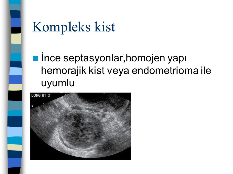 Ultrasonografi Malignite kriterleri Solid patern Kalın septa Kalın cidar Dopler bulgusu Boyut Asit veya peritoneal kitle varlığı