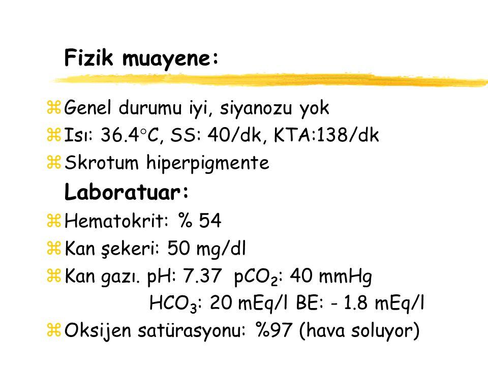 Fizik muayene zGenel durumu kötü, hipotonik zIsı: 36.4  C SS: 68/dk KTA: 138/dk zYüzeyel çekilmeler, 1/6 sistolik üfürüm Laboratuar: zHematokrit: % 47 zKan şekeri: 57 mg/dl zKan gazı: pH: 7.0 pCO 2 : 23 mmHg HCO 3 : 7mEq/l BE: -23 mEq/l zOksijen satürasyonu: % 94