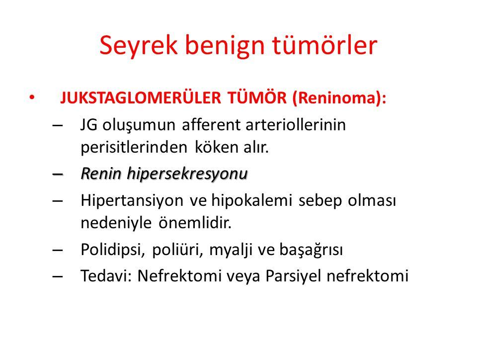 Seyrek benign tümörler JUKSTAGLOMERÜLER TÜMÖR (Reninoma): – JG oluşumun afferent arteriollerinin perisitlerinden köken alır.