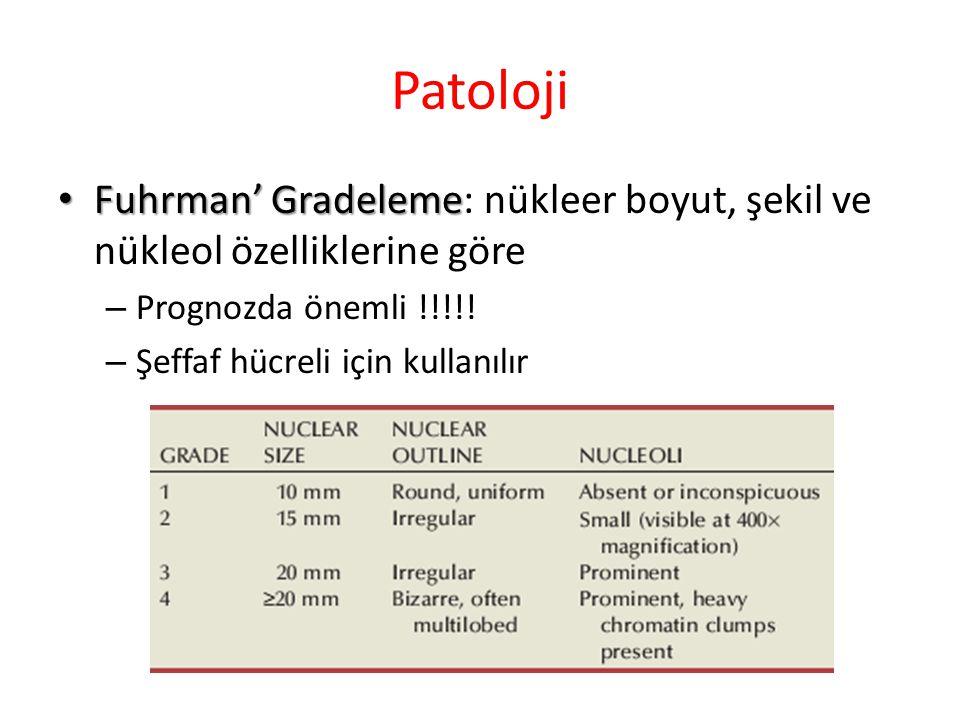 Patoloji Fuhrman' Gradeleme Fuhrman' Gradeleme: nükleer boyut, şekil ve nükleol özelliklerine göre – Prognozda önemli !!!!.