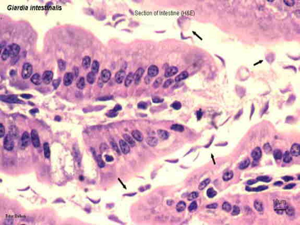 Epitel hücreleri üzerine yapışan parazit emilimi engeller.