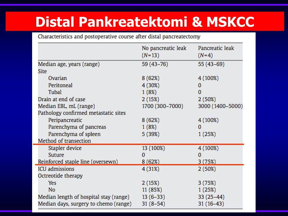 Distal Pankreatektomi