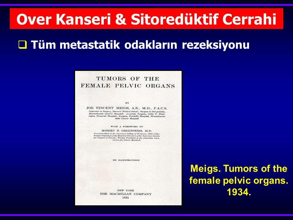  Tüm metastatik odakların rezeksiyonu Over Kanseri & Sitoredüktif Cerrahi Meigs.