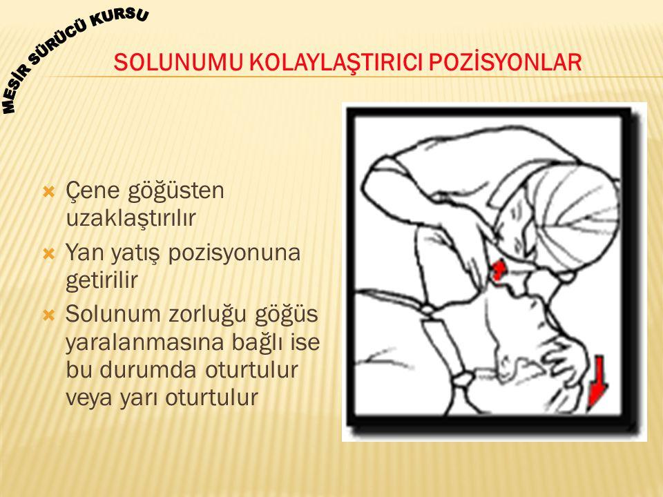  Çene göğüsten uzaklaştırılır  Yan yatış pozisyonuna getirilir  Solunum zorluğu göğüs yaralanmasına bağlı ise bu durumda oturtulur veya yarı oturtu