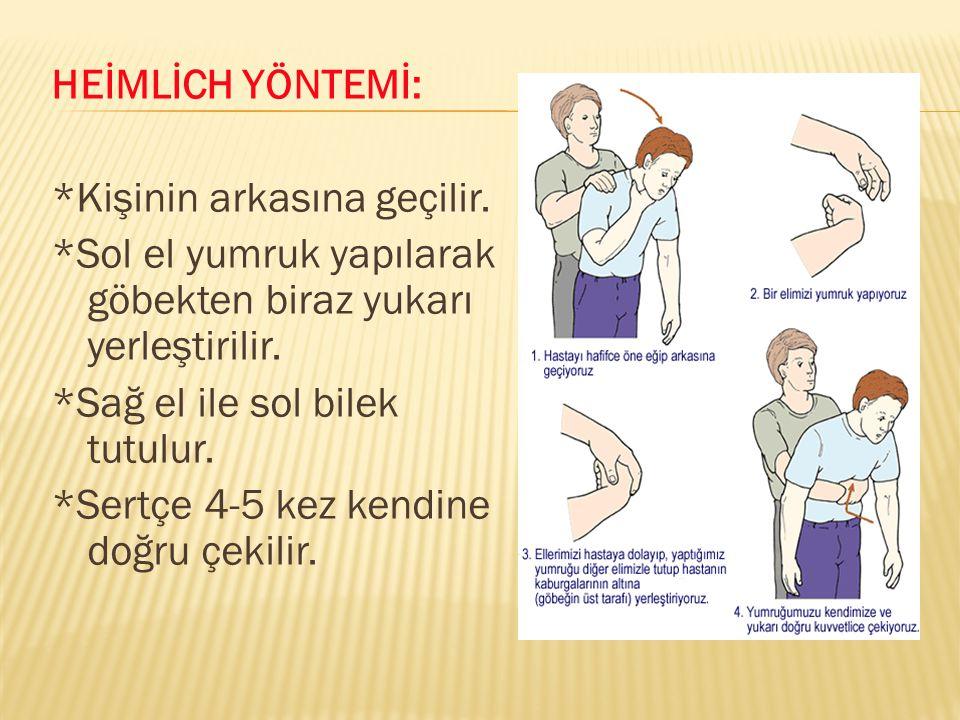 HEİMLİCH YÖNTEMİ: *Kişinin arkasına geçilir. *Sol el yumruk yapılarak göbekten biraz yukarı yerleştirilir. *Sağ el ile sol bilek tutulur. *Sertçe 4-5