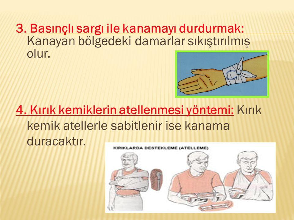3. Basınçlı sargı ile kanamayı durdurmak: Kanayan bölgedeki damarlar sıkıştırılmış olur. 4. Kırık kemiklerin atellenmesi yöntemi: Kırık kemik atellerl