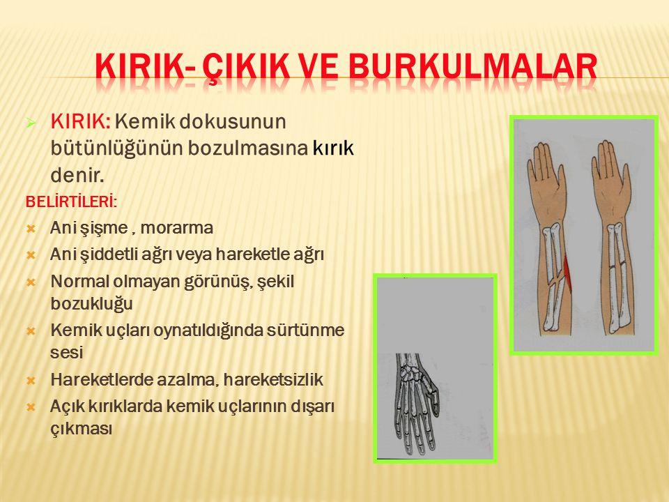  KIRIK: Kemik dokusunun bütünlüğünün bozulmasına kırık denir. BELİRTİLERİ:  Ani şişme, morarma  Ani şiddetli ağrı veya hareketle ağrı  Normal olma